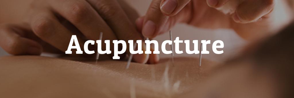 Acunpuncture4